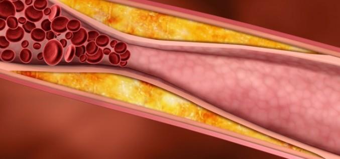Наночастици може в бъдеще да почистват артериите