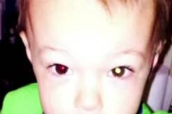 Смартфон диагностицира рядка форма на рак при 2-годишно дете