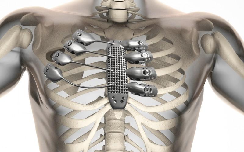 Болен от рак получи първия в света 3D отпечатан гръден кош