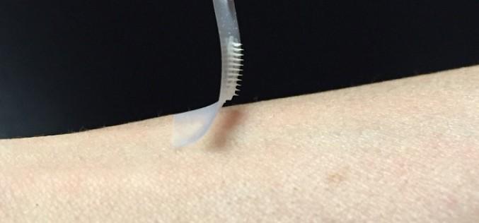Изследователи създават пластир за инсулин със стотици микроигли