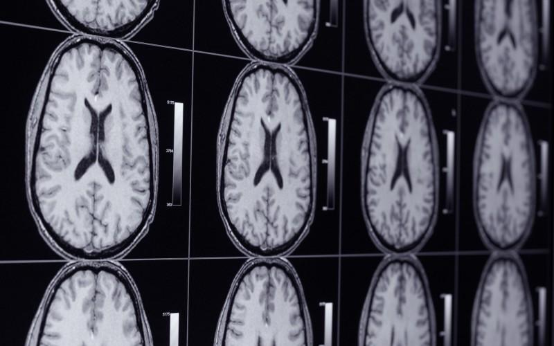 Как порнографията променя мозъчната функция?