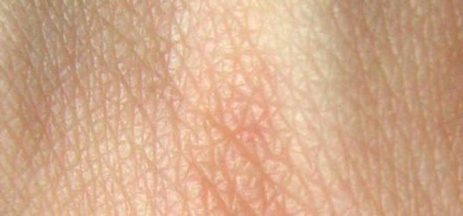 3D биопринтер печата човешка кожа